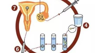 教你一张图看懂试管婴儿的治疗过程