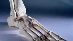 韩国医生首次完成3D打印足跟骨植入手术