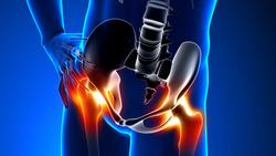 老年股骨颈骨折可用半髋置换