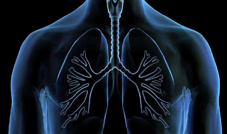 肺癌III期患者远程会诊获取国外医生术后治疗建议