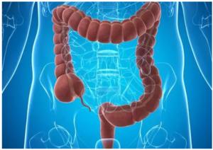 結腸癌發病趨于年輕化,但靠它有望大幅降低死亡率!