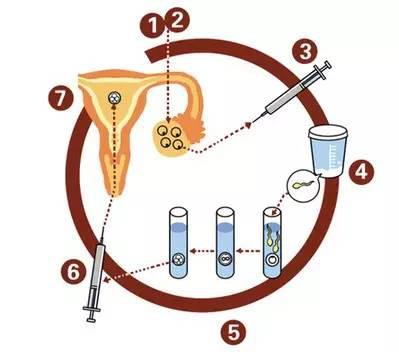 试管婴儿治疗过程