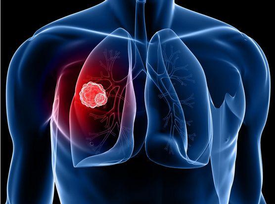 活着就有希望 与瘤共存10年,她如何面对肺癌晚期向死而生?