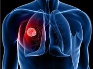活着就有希望|与瘤共存10年,她如何面对肺癌晚期向死而生?
