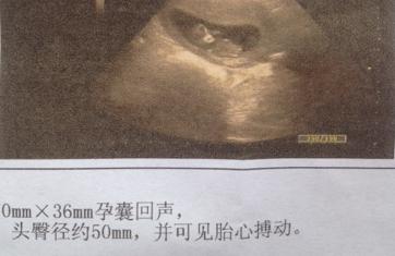 染色体平衡易位 赴泰国试管婴儿